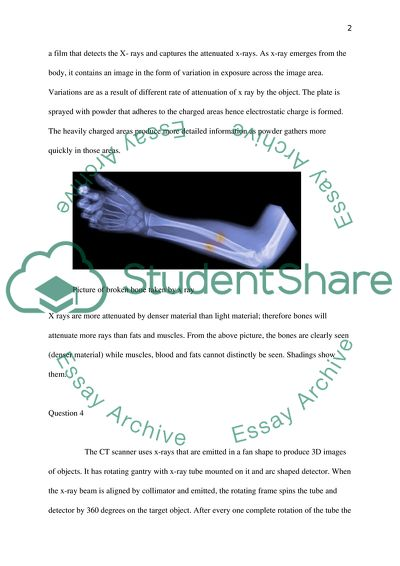 Physic (Medical Imaging & Laser Surgery)