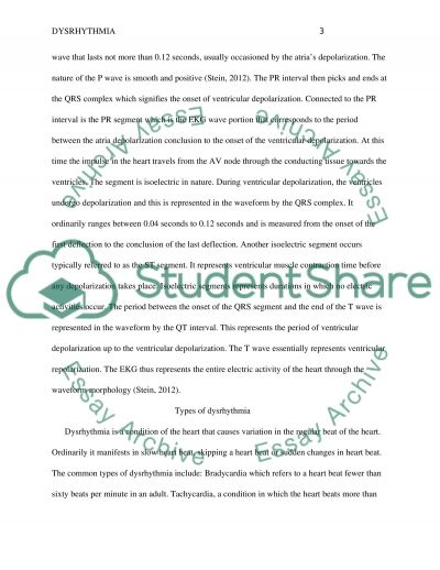 Dysrhythmia Research Paper essay example
