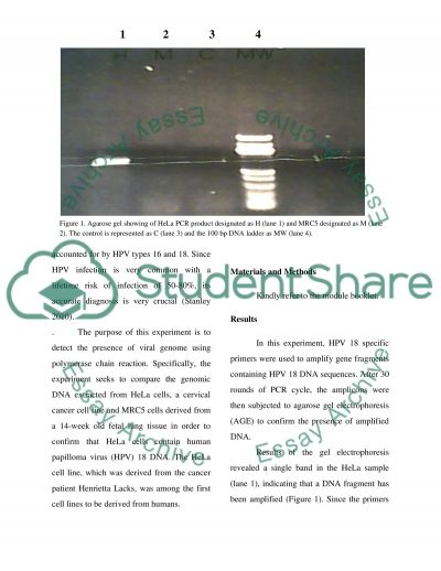 PCR pratical Write-up Journal style.(VIROLOGY) essay example
