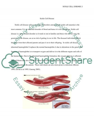 Write my sickle cell anemia research paper